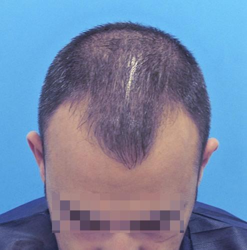 Hombre con primeros síntomas de pérdida de cabello antes de realizar un microinjerto imagen