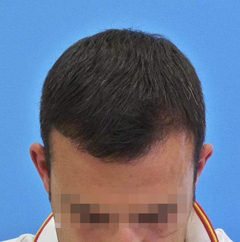 Hombre tras recibir microinjerto capilar