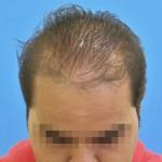 Hombre antes de empezar un tratamiento capilar médico y cosmético