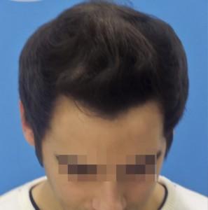 Hombre después del tratamiento capilar médico-cosmético