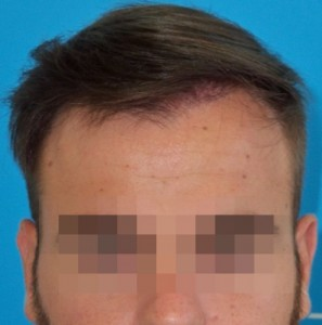 Hombre después de hacerse un microinjerto