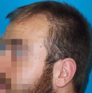 Hombre antes de recibir un microinjerto
