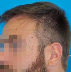 Hombre después de recibir un microinjerto imagen grande