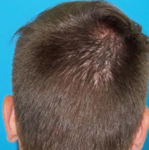 Hombre después de recibir un microinjerto imagen occipital grande