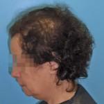 injerto de pelo en mujeres