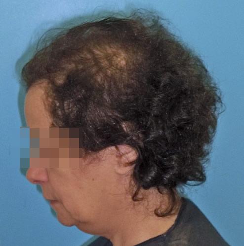 Mujer con alopecia avanzada imagen grande previa a recibir microinjerto