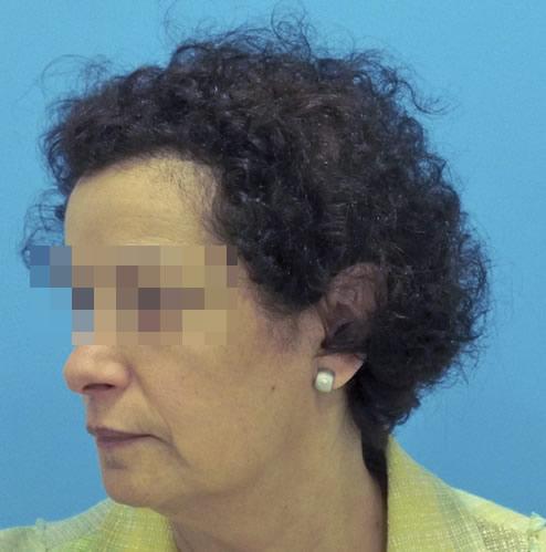 Mujer con alopecia avanzada después de recibir microinjerto