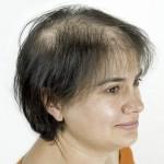 mujer con alopecia avanzada antes sistema de integracion capilar en Svenson