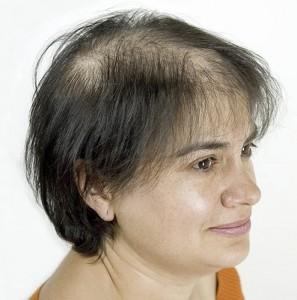 Mujer con alopecia avanzada antes de recibir sistemas Hair & Hair imagen