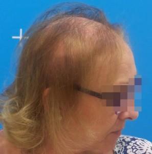 mujer con alopecia avanzada antes sistemas de integracion capilar en Svenson