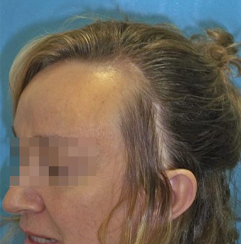 Mujer con problemas capilares antes de realizar un microinjerto imagen