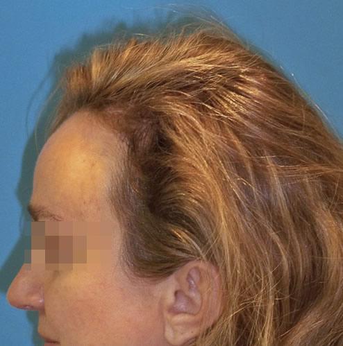 Mujer con problemas capilares después de realizar un microinjerto