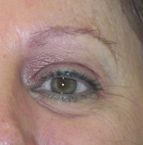 Mujer antes de realizar un microinjerto capilar en cejas imagen