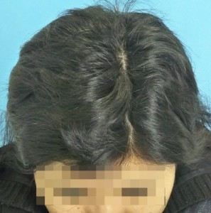 Mujer después de recibir un tratamiento-cosméticos capilar
