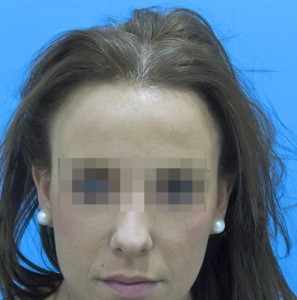 Mujer antes de recibir un tratamiento capilar para la caída precoz femenina