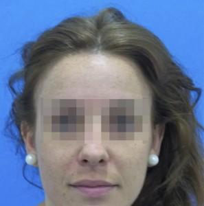 Mujer después de recibir un tratamiento capilar para la caída precoz femenina