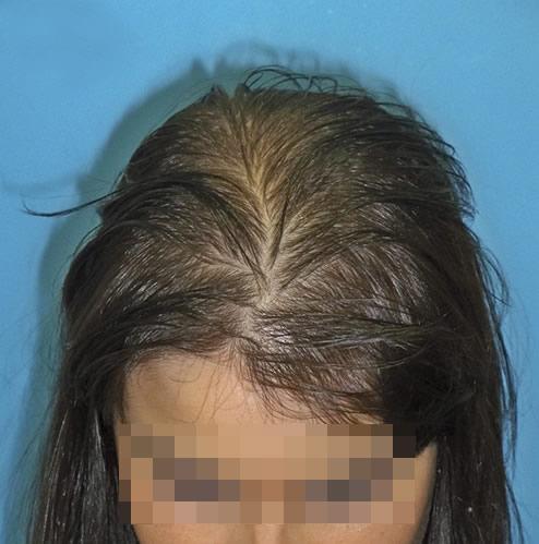 Imagen grande de mujer con síntomas visibles de pérdida de cabello antes de recibir microinjerto capilar