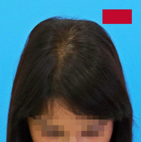 Imagen de mujer después de recibir microinjerto capilar