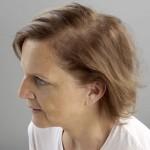 sistemas de integracion capilar - opiniones mujer