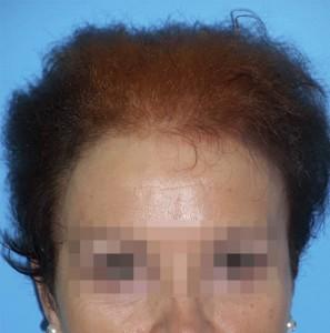 Mujer con síntomas visibles de alopecia avanzada antes de recibir sistema Hair & Hair imagen