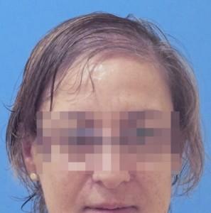 Estado inicial del cuero cabelludo de una mujer antes de un tratamiento capilar