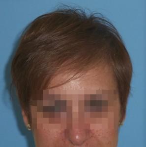 Estado final del cuero cabelludo de una mujer después de un tratamiento capilar