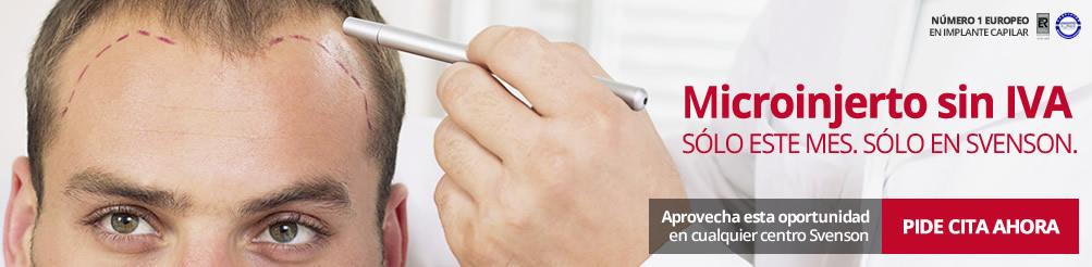 Implante capilar sin IVA en Svenson