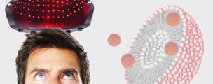 Terapia Láser Anticaída con Nanosomas