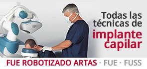 Implante ARTAS