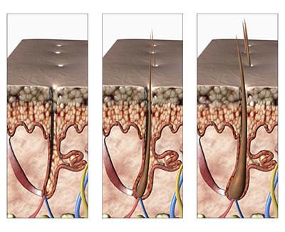 Tres imágenes dónde se ve la evolución del folículo capilar en la piel
