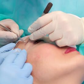 Resultado de un implante capilar en cejas